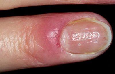 Кандидомикоз на пальце