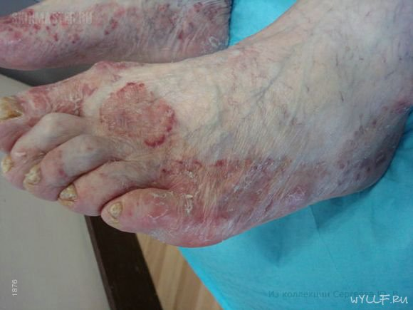 симптомы заражения паразитами у человека лечение
