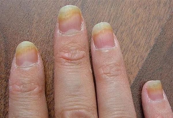 Мази для размягчения ногтей на ногах при грибке