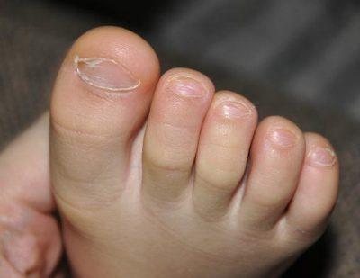 признаки паразитов в организме трехлетнего ребенка