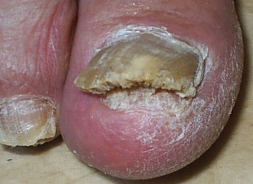 шишки на пятке от тесной обуви фото