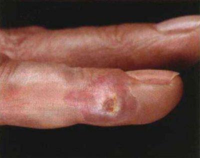 Строптихоз пальцев рук