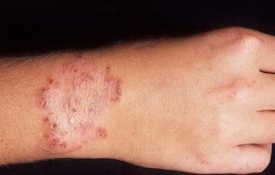 Дерматомикоз на руке