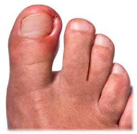 Чем лечить нагноение около ногтях