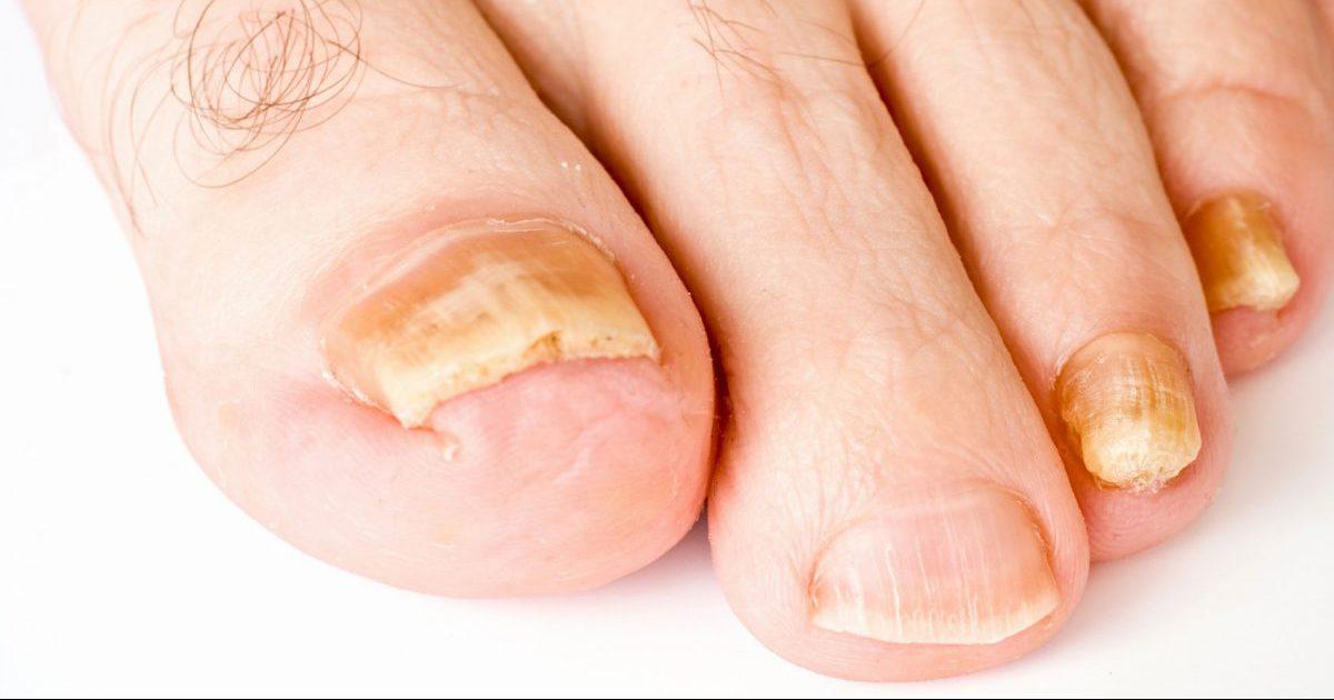 Реальные народные средства от грибка ногтей